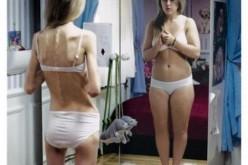 Anoressia, chi ne soffre non si riconosce più al tatto