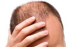 Calvizie: le staminali rigenerano i capelli caduti