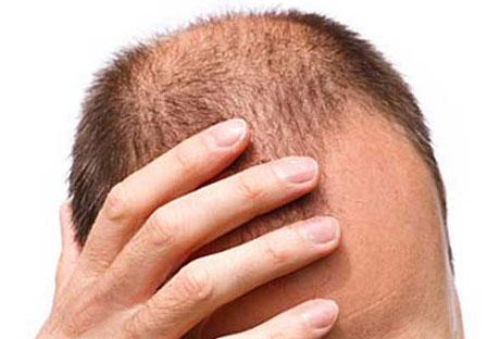 Forum ricrescita capelli uomo