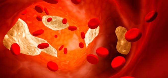 Colesterolo, sperimentato il primo vaccino