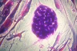 Create le prime staminali clonate da cellule adulte