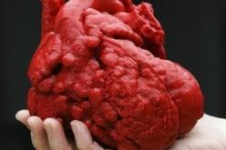 USA: bambino salvato da un cuore stampato in 3D