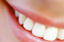 Fumi e mangi troppo? Il dente ti avvertirà