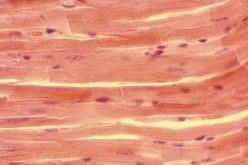 Distrofia, scoperto il recettore che controlla la crescita dei muscoli