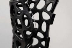 """Fratture guarite con stampa in 3D? Arriva """"Osteoid"""", il gesso del futuro"""