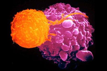 Tumori, scoperto come bloccarli prima che si sviluppino metastasi