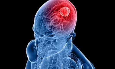 Tumore al cervello, i cellulare di vecchia generazione aumentano il rischio