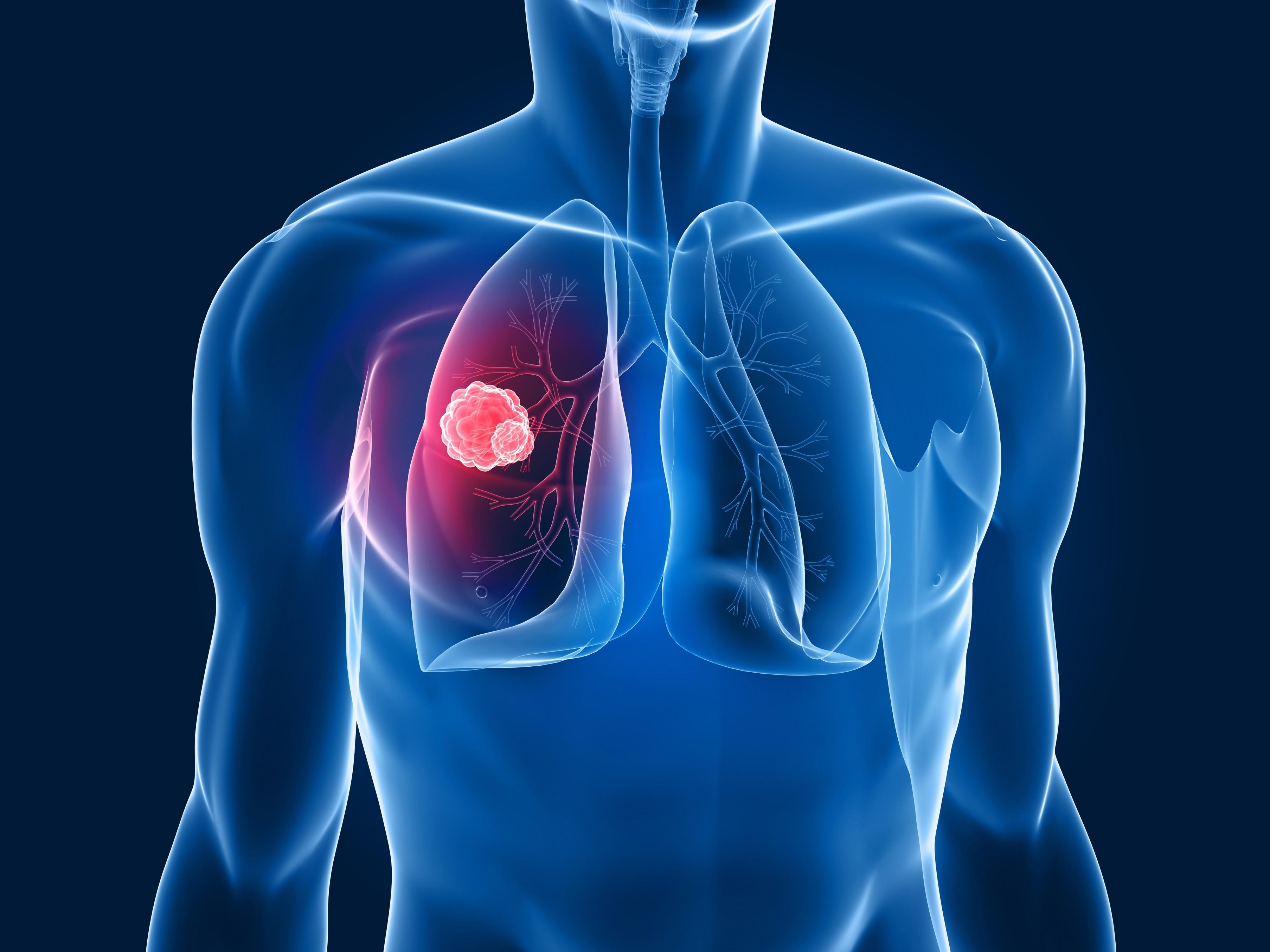 Tumore al polmone, scoperto come bloccarne lo sviluppo