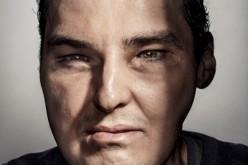 Cambiamenti radicali, uomo copertina su GQ dopo il trapianto completo di faccia