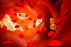 Il colesterolo può favorire i tumori