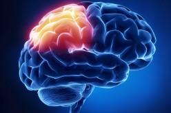 Ictus, il cervello si può riparare con le staminali