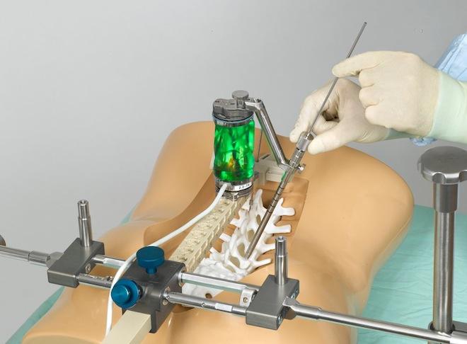 Chirurgia hi-tech, a Torino il primo robot-chirurgo spinale