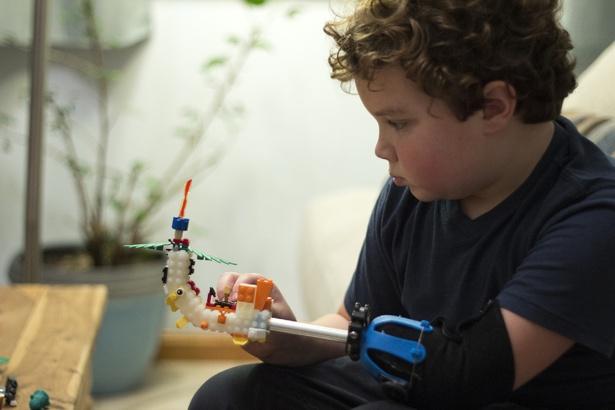 Aidan Robinson: il bambino con la mano di LEGO