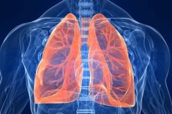 Tumore ai polmoni, si potrà scoprire tamponando le guance