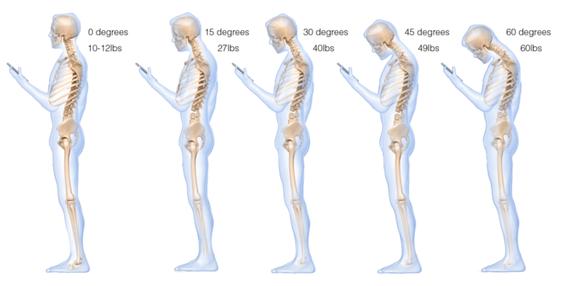 Lo smartphone danneggia la postura: come avere 27 kg sulla schiena