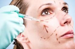 Un lifting dal dentista? L'ultima tendenza in materia di trattamenti estetici