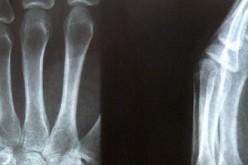 Artrosi, realizzata cartilagine artificiale che ripara i tessuti