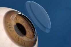 Trapianto di cornea, una capsula per prevenire il rigetto