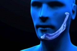 Primo trapianto di mandibola artificiale in Italia, a Padova