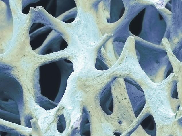 Risultati immagini per osso bionico