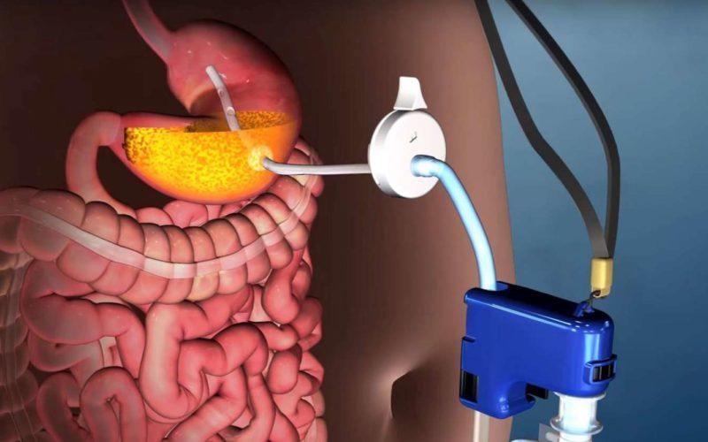 AspireAssist, il dispositivo che elimina cibo dallo stomaco