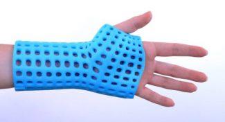 Fratture, il gesso del futuro è un esoscheletro in 3D