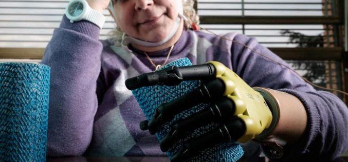Impiantata la prima mano bionica dotata di tatto