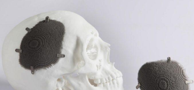 Un volto nuovo grazie alla stampa 3D