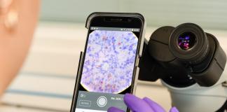 I partner NetApp migliorano la cura del paziente con l'AI