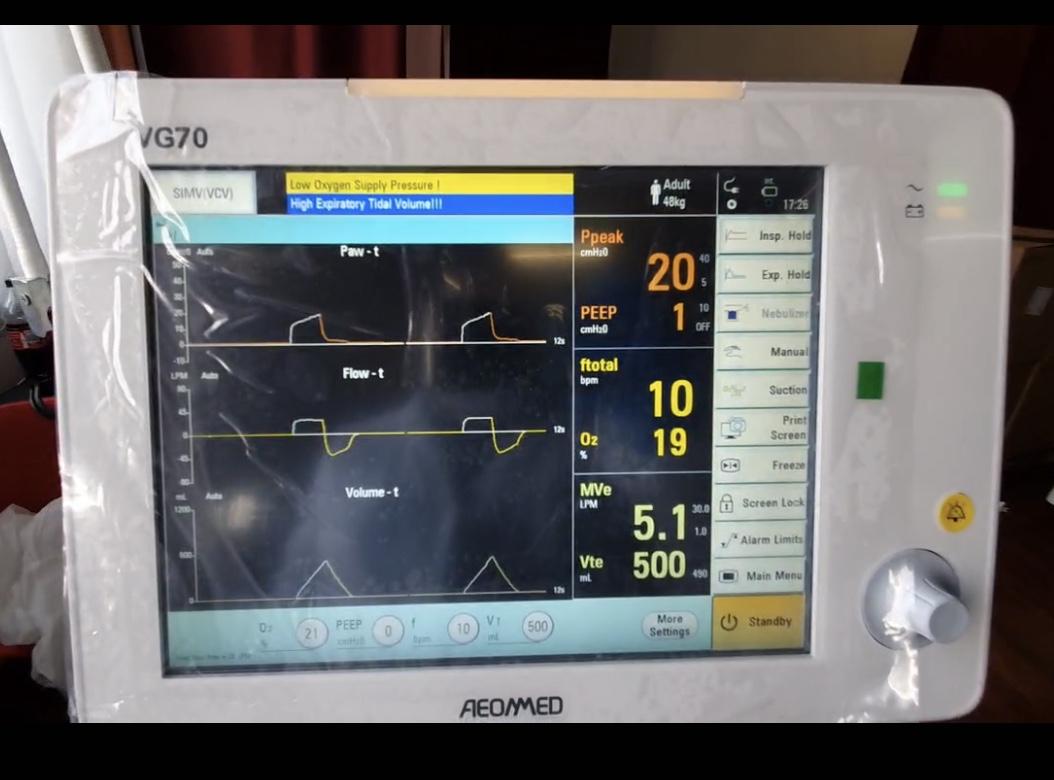 ZTE dona alla Protezione Civile 5 respiratori per la terapia intensiva